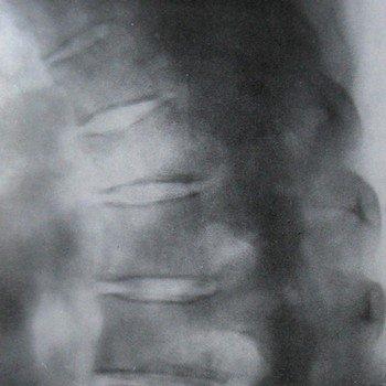 Повреждения 4 грудного позвонка и их рентгенодиагностика
