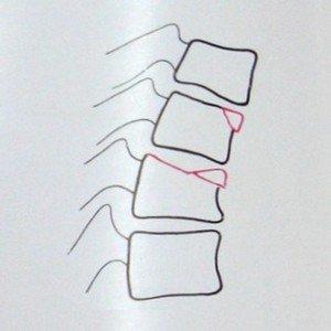 Схема к рентгеновскому снимку перелома 4 и 5 грудных позвонков в боковой проекции