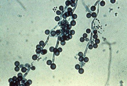 Микропрепарат Candida albicans