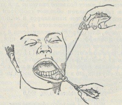 Обезболивание с помощью замораживания тканей хлорэтилом