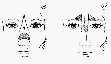 Пластическое закрытие дефектов кожи