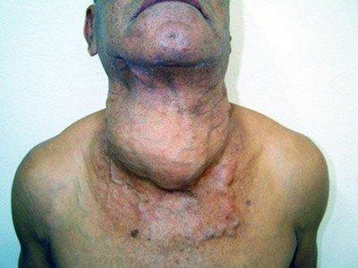 Раковая опухоль щитовидной железы гигантских размеров