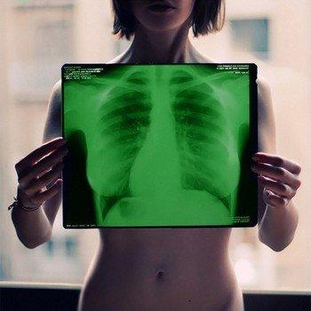 Рентген мягких тканей груди