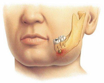 Флюс - симптом острого воспалительного процесса на челюстях