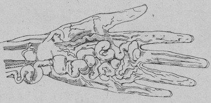Ветвистая или рацемозная ангиома