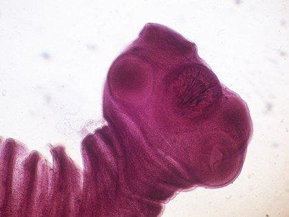 Taenia solium - свиной цепень