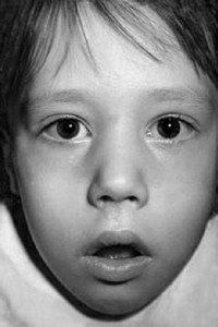 Аденоидный habitus у ребенка