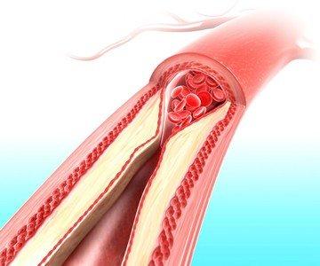 Атеросклероз сосудов головного мозга - одна из причин преходящих нарушений мозгового кровообращения