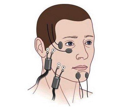 Физиолечение неврита лицевого нерва