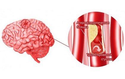 Микроэмбол, закупоривающий сосуд головного мозга в области атеросклеротической бляшки