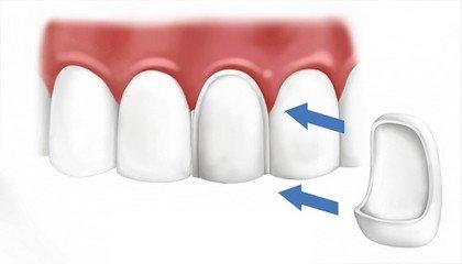 Критерии и принципы восстановления коронок зубов