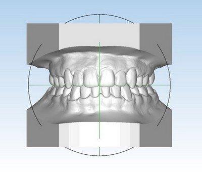 Принципы ортодонтической диагностики