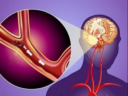 Преходящие нарушения мозгового кровообращения (микроинсульт)