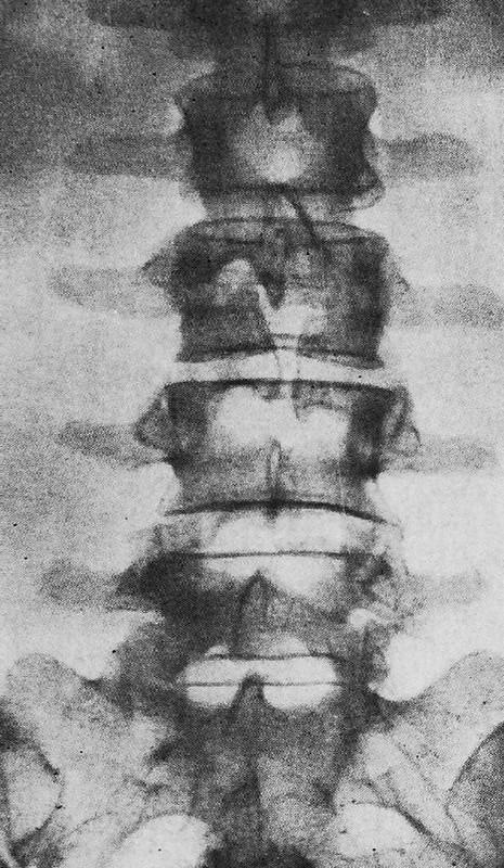 Незаращение дуг (spina bifida) III поясничного позвонка