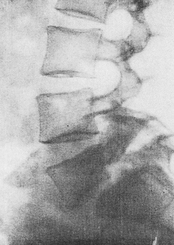 Спондилолиз и спондилолистез: Смещение тела V поясничного позвонка кпереди, широкие дефекты в межсуставных участках дуги этого позвонка