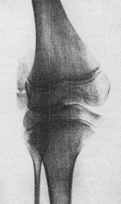 Врожденный вывих в коленном суставе на рентгенограмме