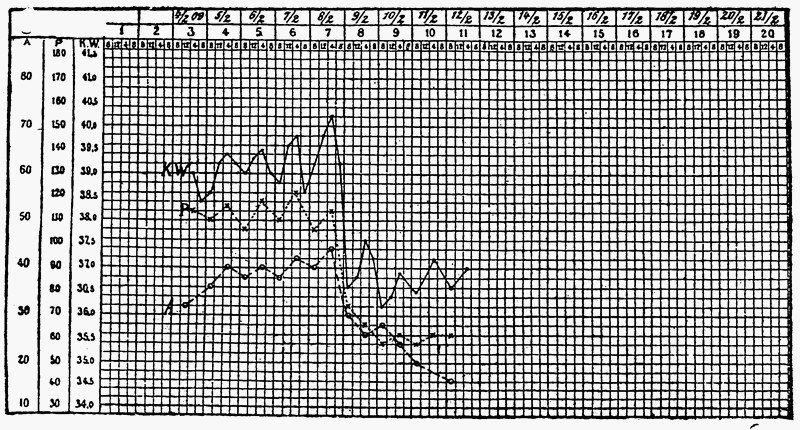 Кривая пульса (Р), температуры (KW) и дыхания (А)