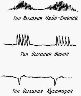 Типы нарушений дыхания у больных