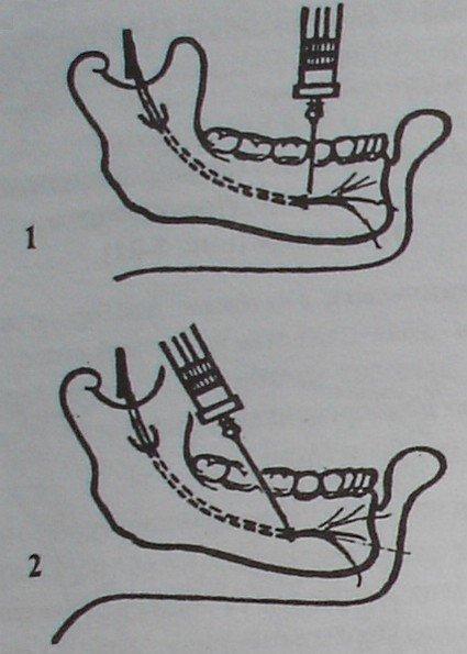 Обезболивание подбородочного нерва внутриротовым (1) и внеротовым (2) способом