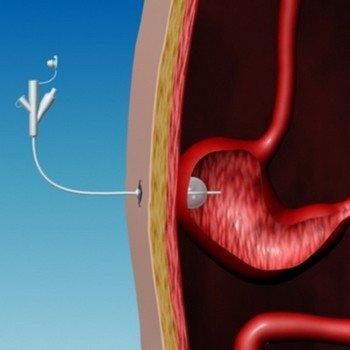Желудочная фистула и кормление через нее