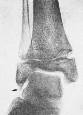 Окостенение части пяточно-малоберцовой связки — лигаментоз (стрелка) у ребенка 10 лет при разболтанности сустава после перенесенного полиомиелита