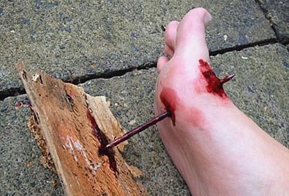 Ранения костей колющими предметами