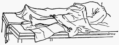 Расположение салфеток при операциях на нижней конечности