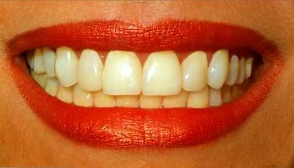 Стоматологические привычки разрушающие зубы