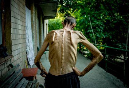 Похудание - первый признак туберкулеза