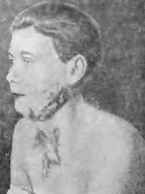 Больная с келлоидным рубцом на лице и груди после ожога пламенем (фото)