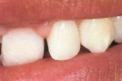 Переход зуб-реставрация