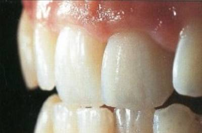 Результат реплантации зуба