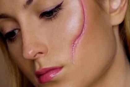 Келлоидные рубцы на лице и их удаление