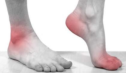 Признаки подагрического артрита