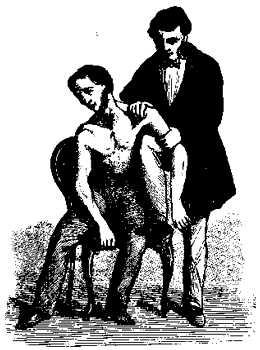 Вправление вывиха плеча при помощи помощника