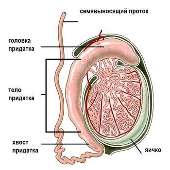Диагностика и лечение кисты придатка яичка