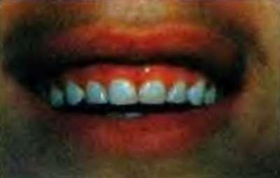 Проведена коррекция формы зубов композитом для закрытия трем