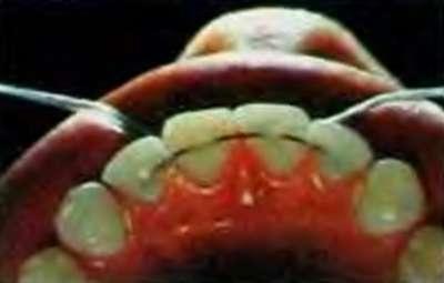 Проведена стабилизация зубов ортодонтической дугой, зафиксированной на композит