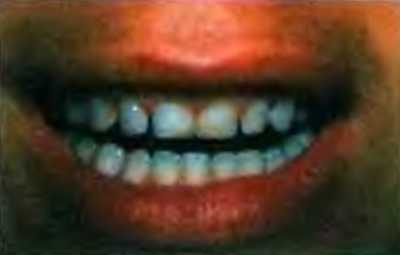 У пациента имеются тремы между зубами