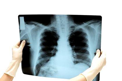 Интерстициальная инфильтрация легких