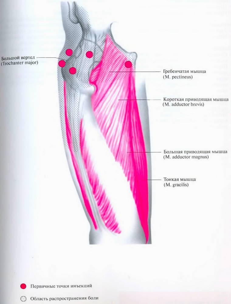 Блокада при периартрозе тазобедренных суставов