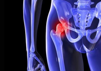 Периартроз тазобедренных суставов: лечение боли блокадой