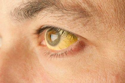 Лечебно-диагностическая тактика при механической желтухе