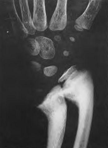 Генерализованное нарушение роста костей