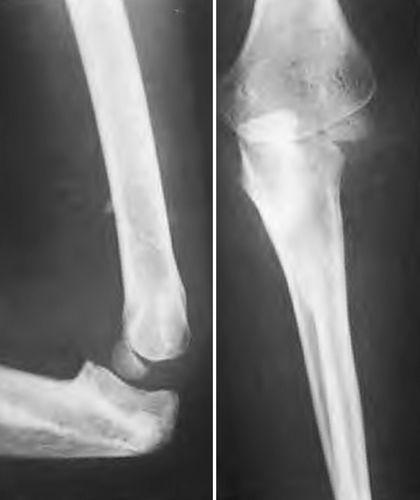 Врожденное сращение лучевой и локтевой костей