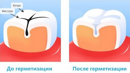 Герметизация фиссур и ямок зубов