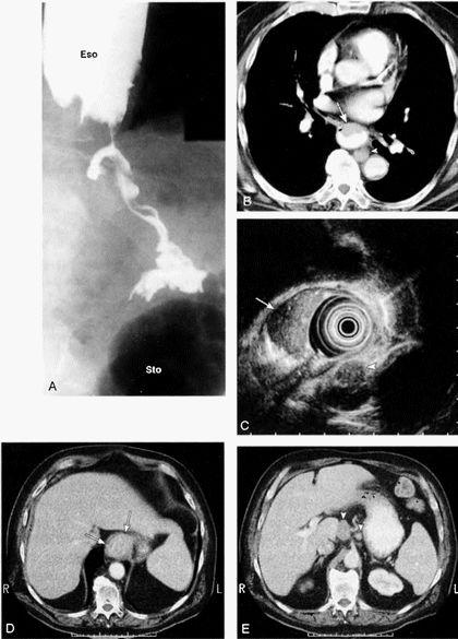 Рак нижнего отдела пищевода на КТ