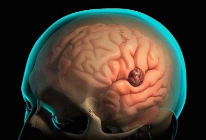 Рак мозга: какие виды бывают и по каким признакам моно его заподозрить