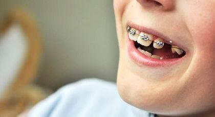 Когда обратиться к ортодонту?