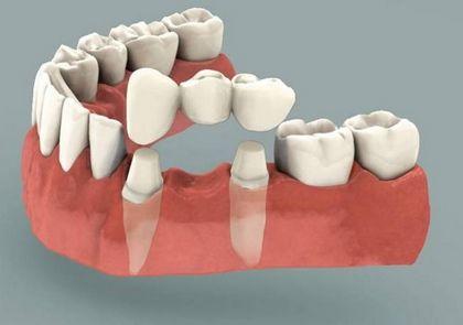 Особенности и преимущества несъемного протезирования зубов
